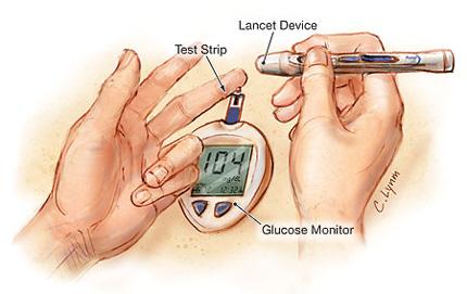 jama_diabetes_type1.jpg